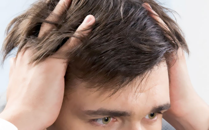 The Only Men's Guide You'll Need to Real Hair Growth! The Real Facts!
