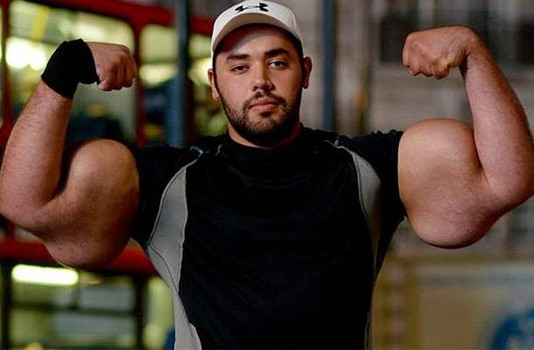 Injecting Synthol into Biceps Gone Wrong