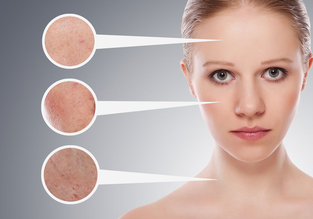 What Are the Skin Problems Commonly Faced in Modern Day? • GetHow