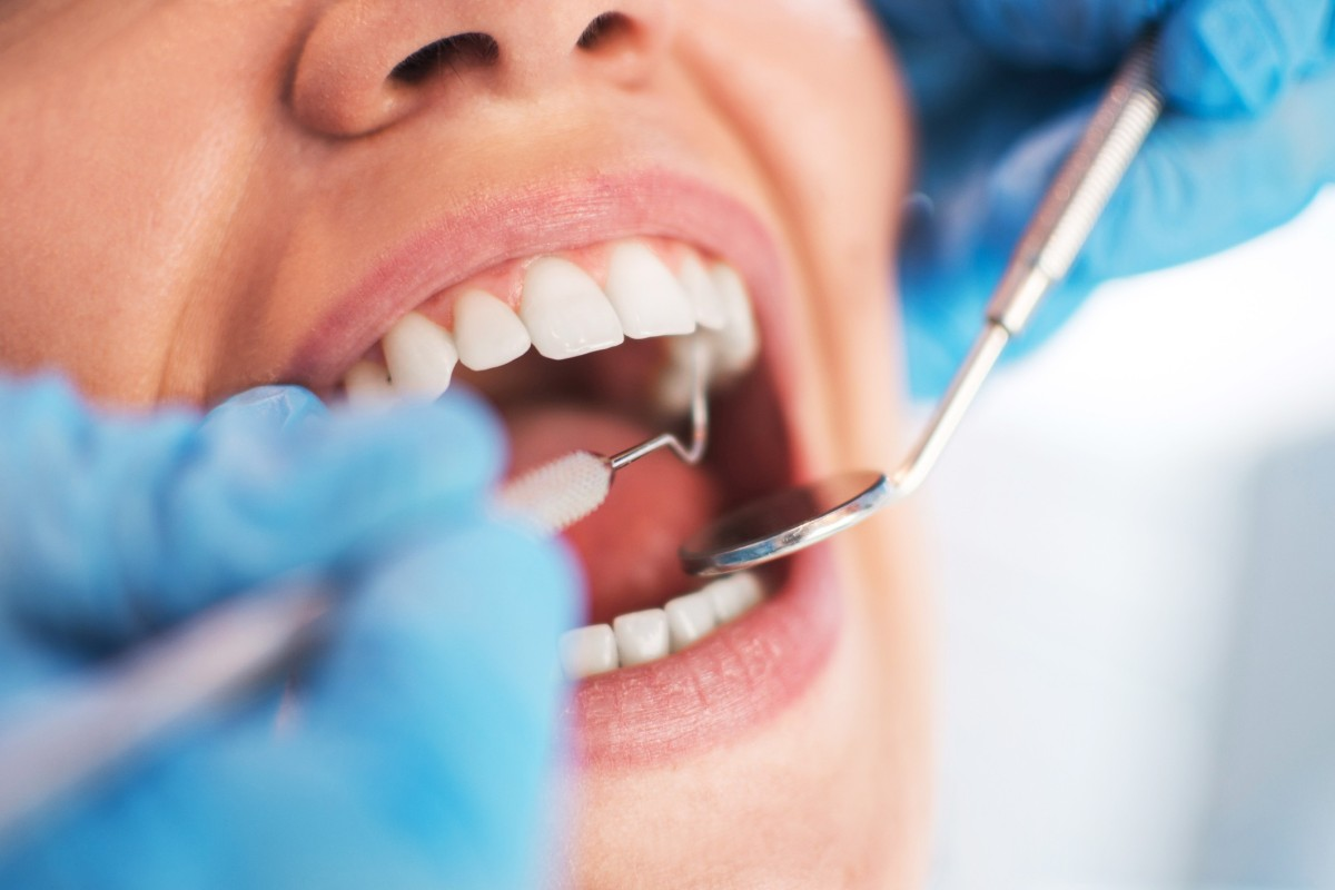Why You Need to Have Dental Work Done in Naperville IL Before You Retire