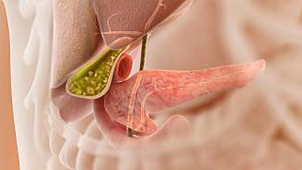 Gallbladder Stone Treatment